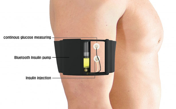 ARMC - Wearable Artificial Pancreas for Diabetics Patient by JEON Kiseop and Juhyeong LEE