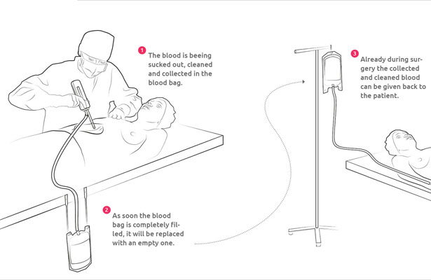 Bloop Medical Device to Recycle Your Own Blood During Surgery