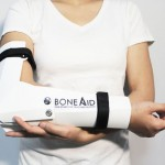 Portable and Affordable BoneAid Flat-Packed Board For Fixing Fractures