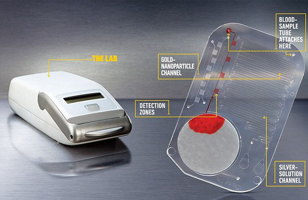 mChip Detects HIV in minutes