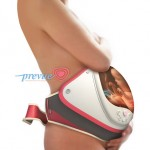 PreVue Fetal Visualization Device by Melody Shiue