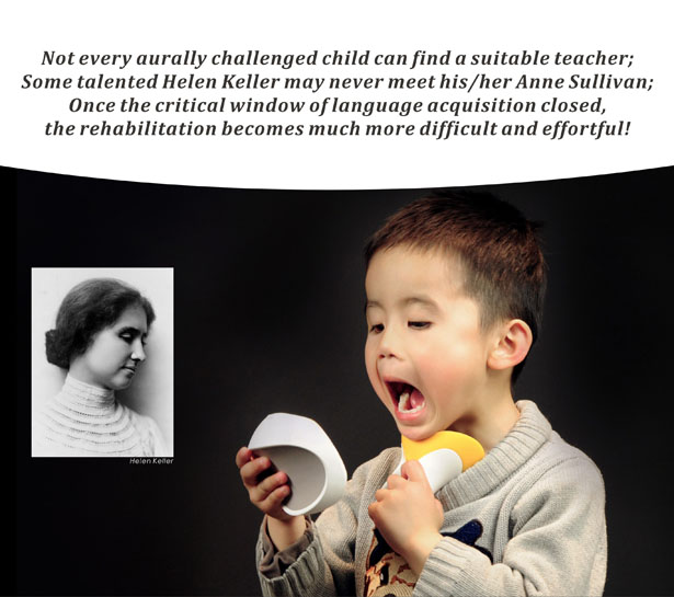 VV-Talker Speech Device for Vulnerable Deaf Children