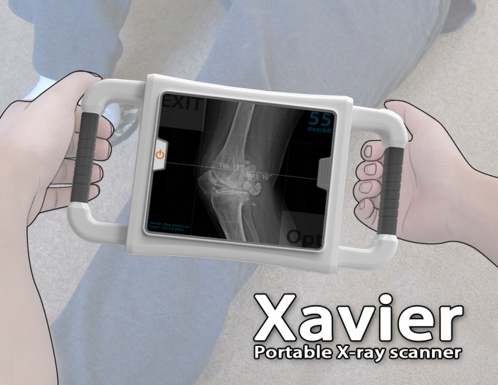 Xavier Portable X-Ray by Danwei Ye